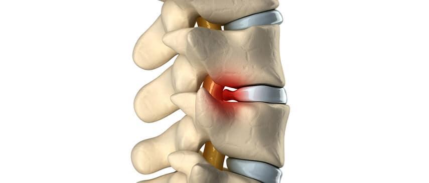 herniated-disc